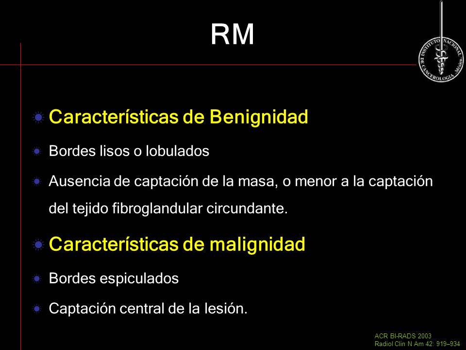 RM Características de Benignidad Características de malignidad