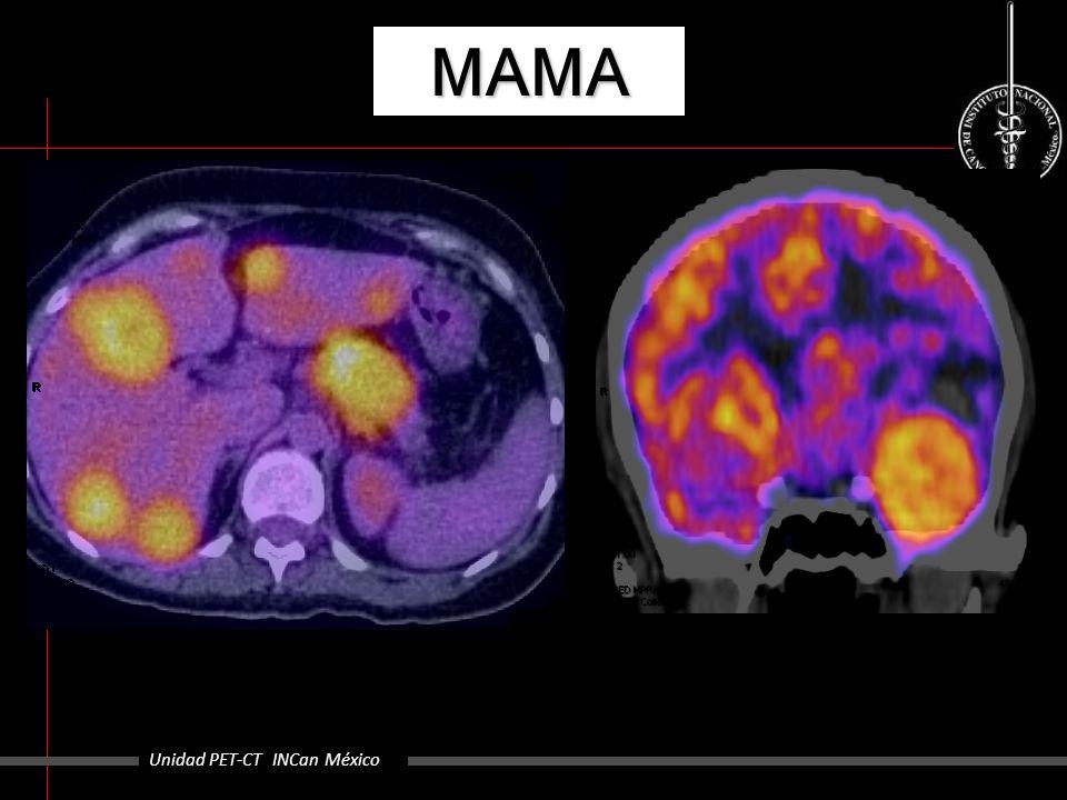 MAMA Unidad PET-CT INCan México