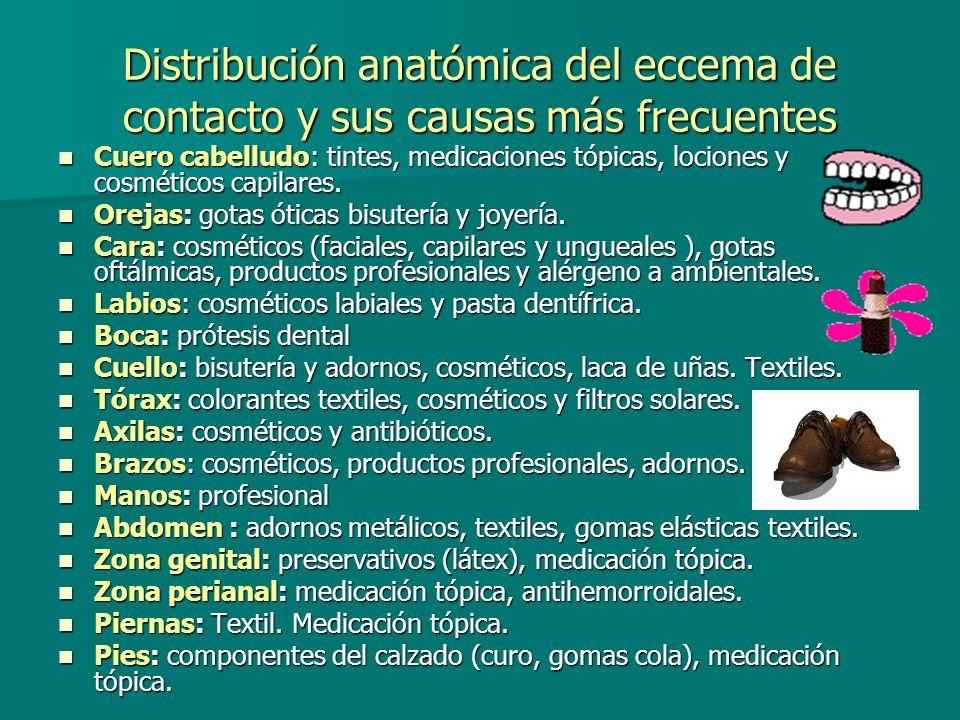 Distribución anatómica del eccema de contacto y sus causas más frecuentes
