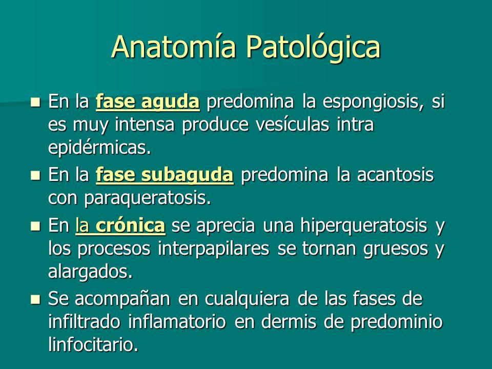 Anatomía Patológica En la fase aguda predomina la espongiosis, si es muy intensa produce vesículas intra epidérmicas.