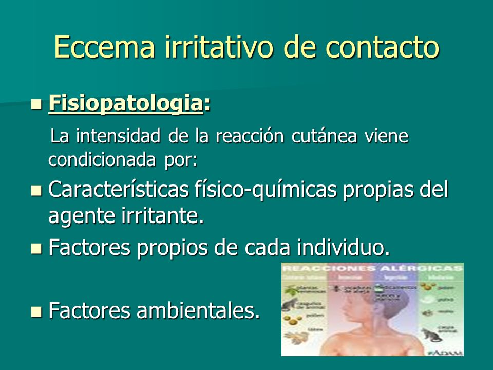 Eccema irritativo de contacto