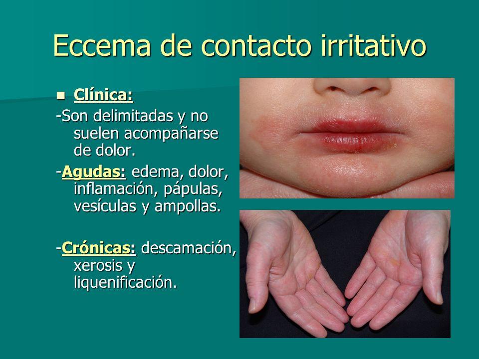 Eccema de contacto irritativo