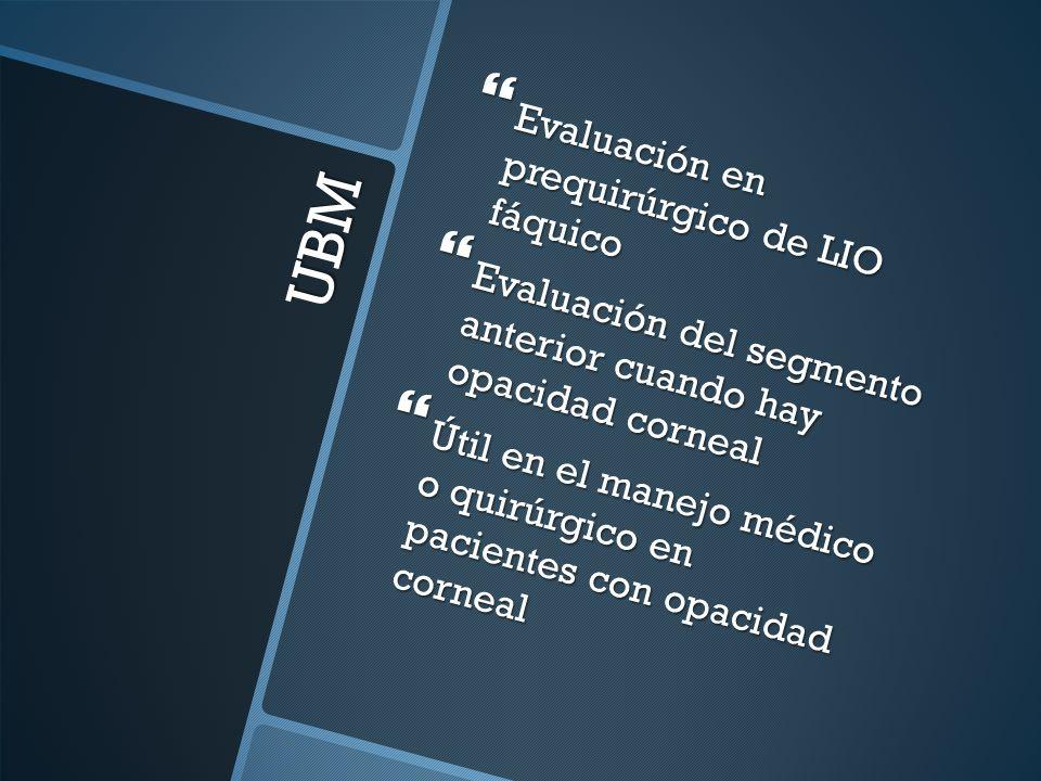 UBM Evaluación en prequirúrgico de LIO fáquico