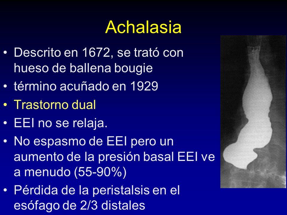 Achalasia Descrito en 1672, se trató con hueso de ballena bougie