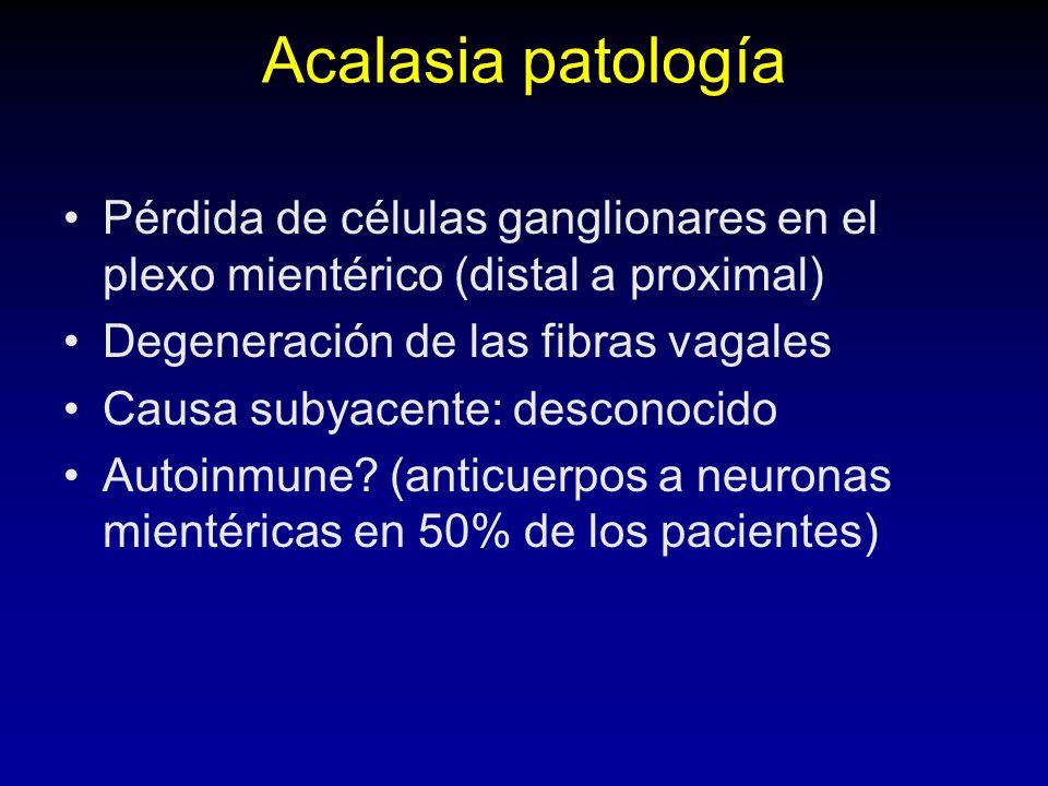 Acalasia patología Pérdida de células ganglionares en el plexo mientérico (distal a proximal) Degeneración de las fibras vagales.
