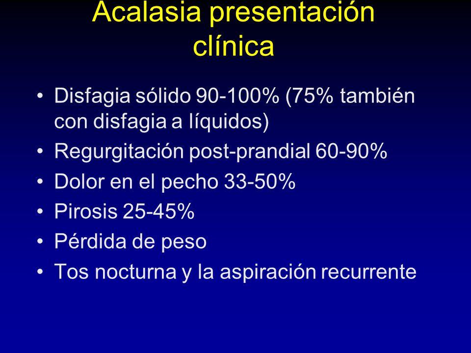 Acalasia presentación clínica