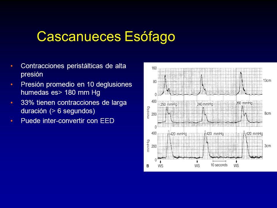 Cascanueces Esófago Contracciones peristálticas de alta presión