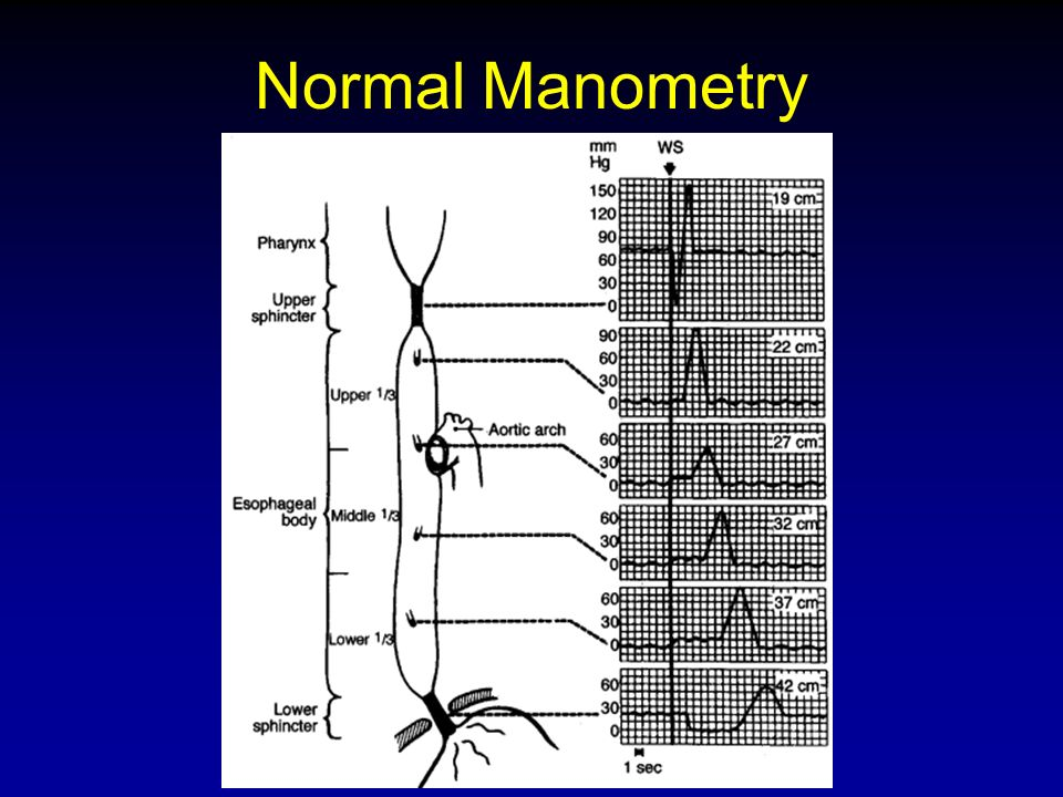 Normal Manometry From S&F, 2002.