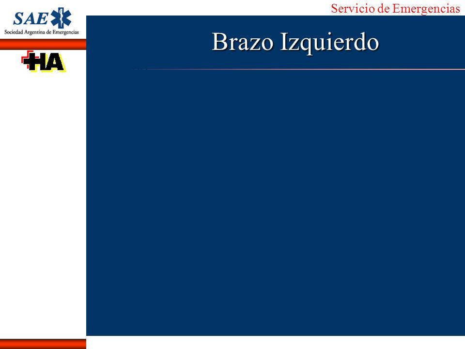 Brazo Izquierdo