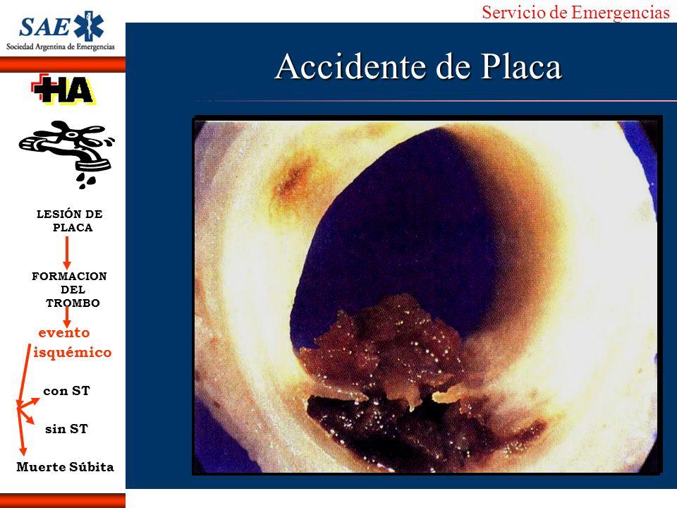 Accidente de Placa evento isquémico con ST sin ST Muerte Súbita