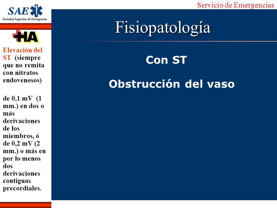 Fisiopatología Con ST Obstrucción del vaso