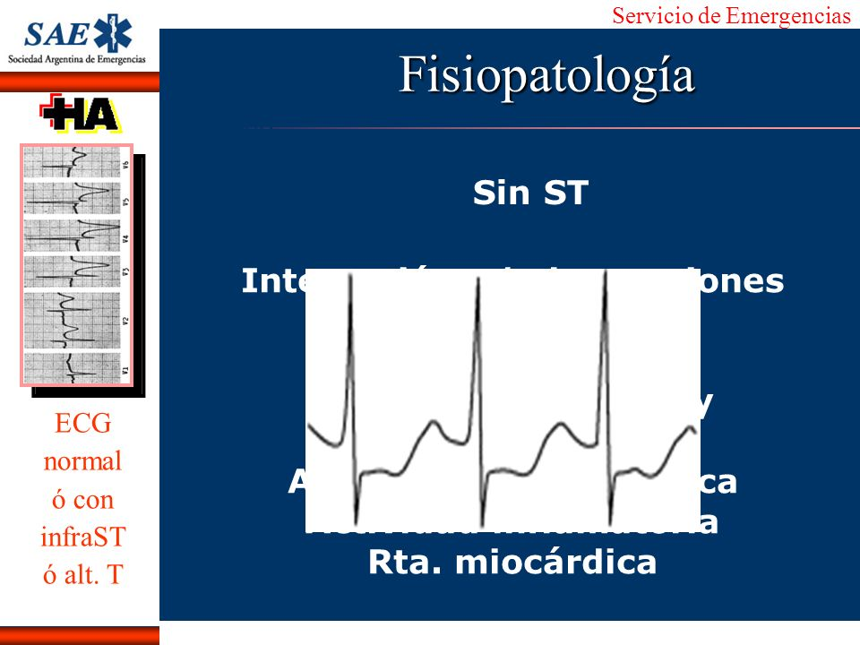 Fisiopatología Sin ST Interacción e/ obstrucciones críticas