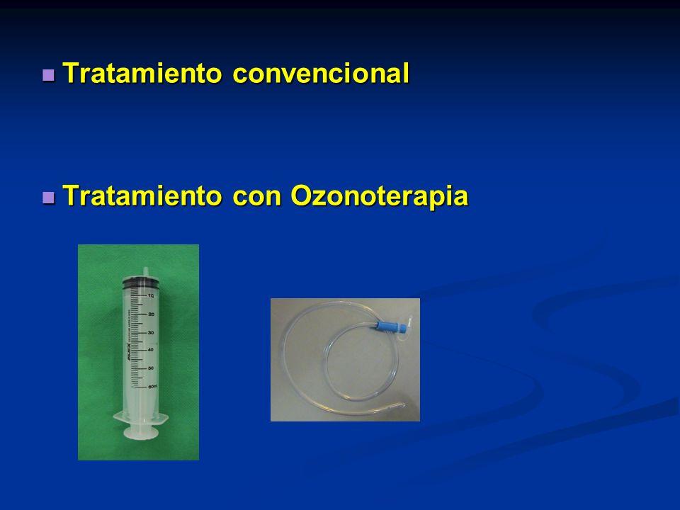 Tratamiento convencional