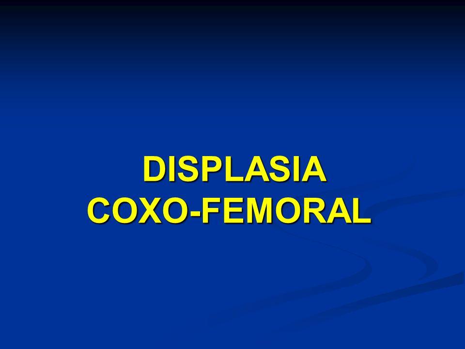 DISPLASIA COXO-FEMORAL