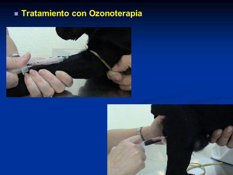 Tratamiento con Ozonoterapia
