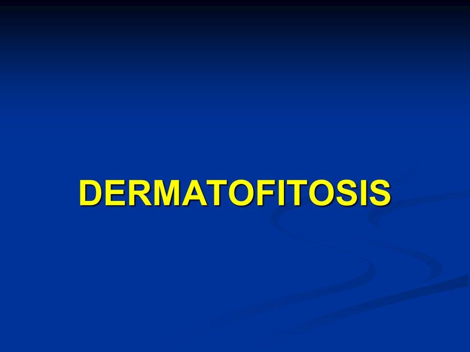 DERMATOFITOSIS