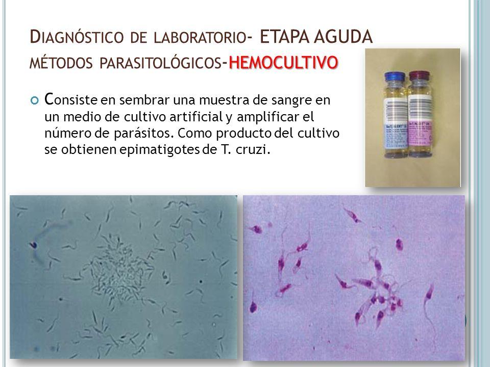 Diagnóstico de laboratorio- ETAPA AGUDA métodos parasitológicos-hemocultivo