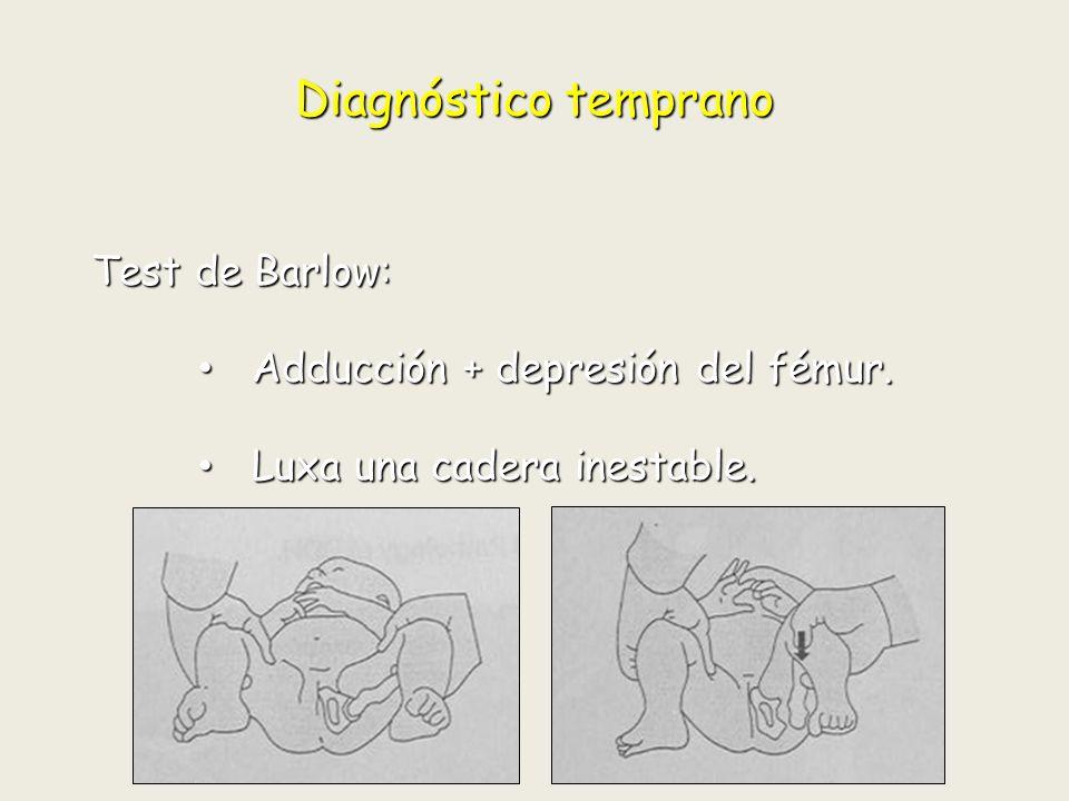 Diagnóstico temprano Test de Barlow: Adducción + depresión del fémur.