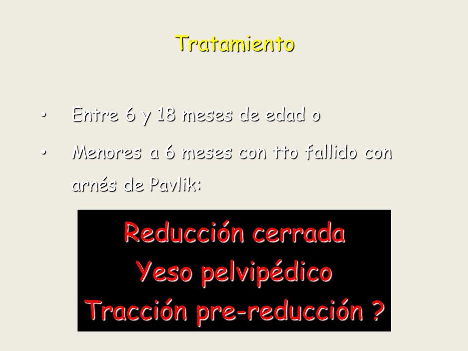 Tracción pre-reducción