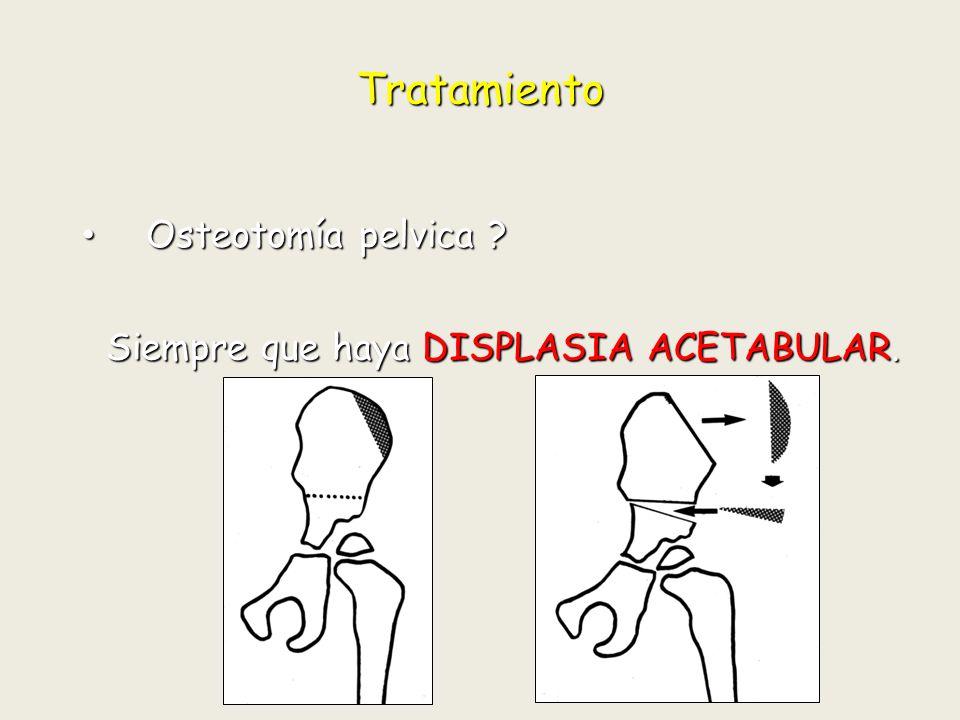 Tratamiento Osteotomía pelvica