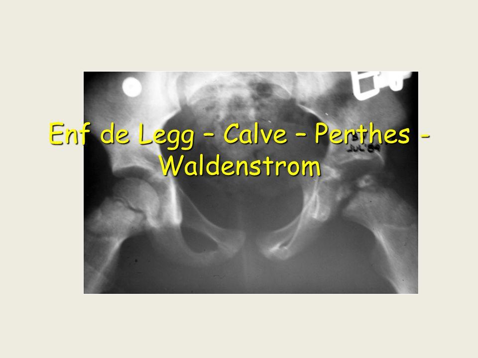 Enf de Legg – Calve – Perthes - Waldenstrom