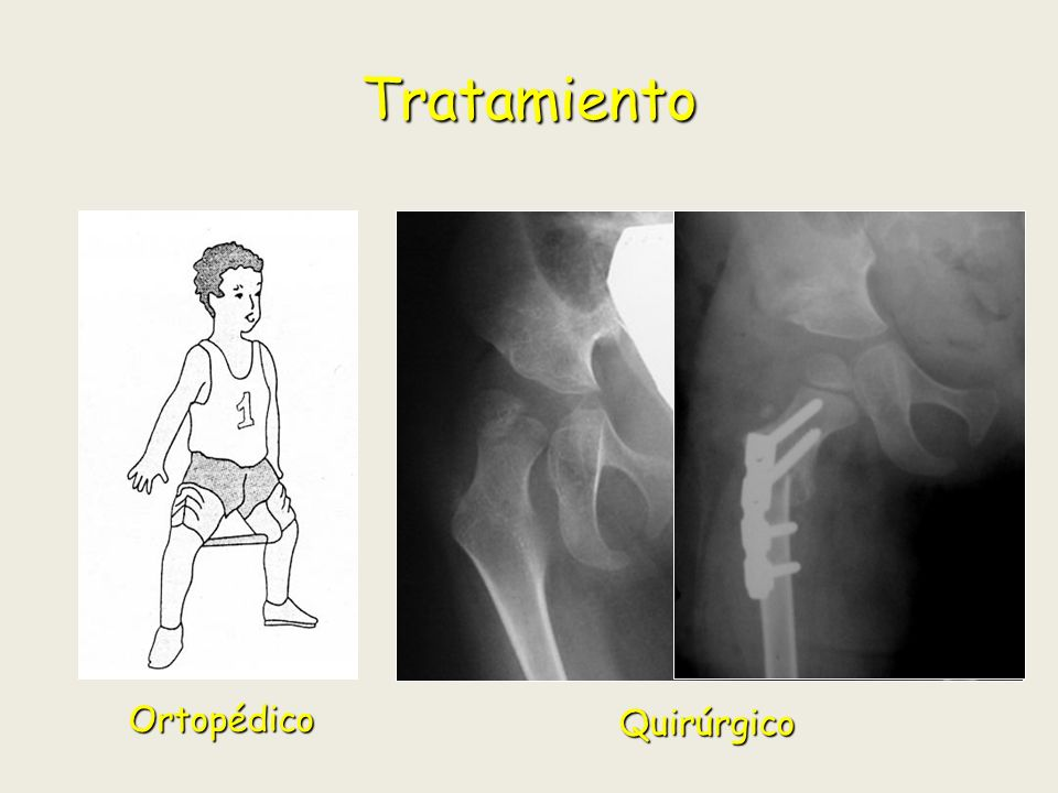 Tratamiento Ortopédico Quirúrgico