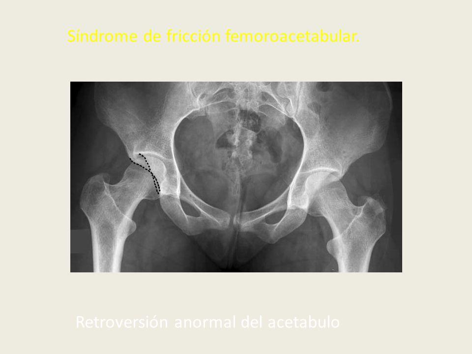 Síndrome de fricción femoroacetabular.