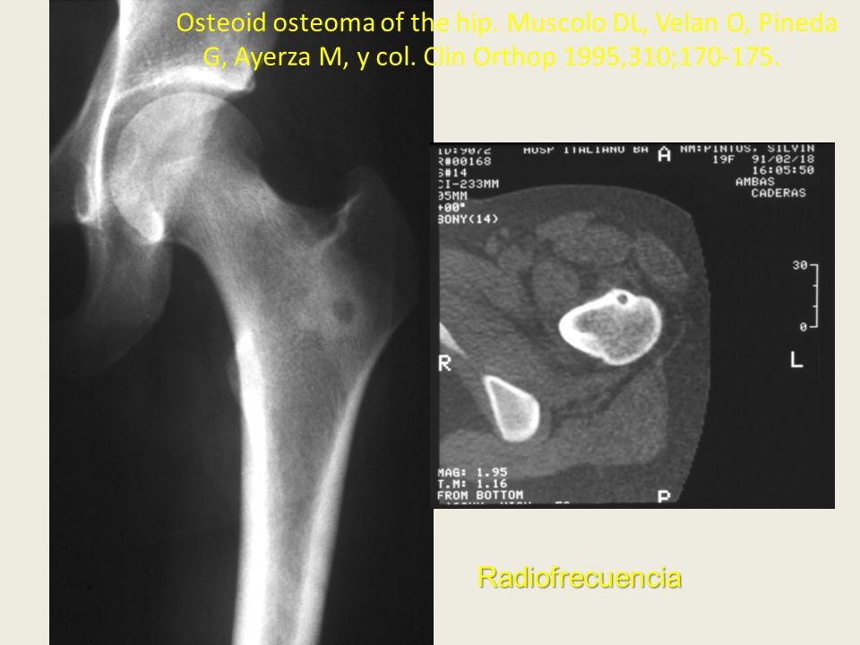 Osteoid osteoma of the hip