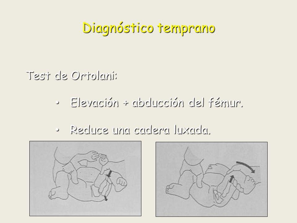 Diagnóstico temprano Test de Ortolani: