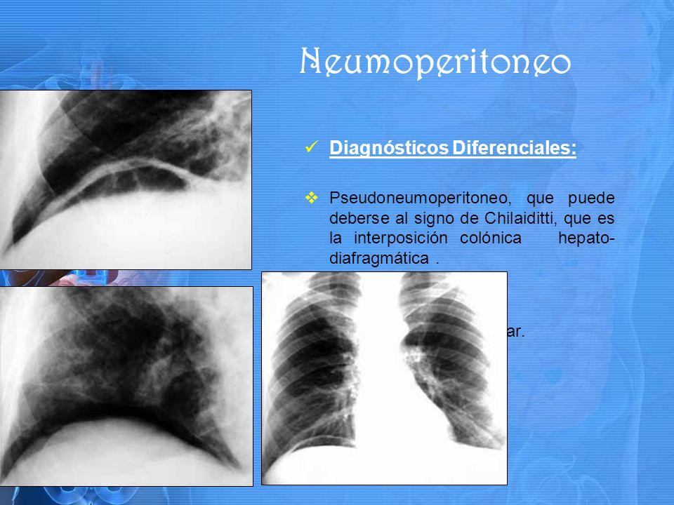 Neumoperitoneo Diagnósticos Diferenciales: