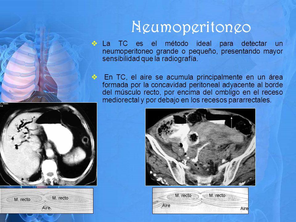 Neumoperitoneo La TC es el método ideal para detectar un neumoperitoneo grande o pequeño, presentando mayor sensibilidad que la radiografía.