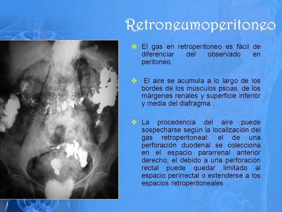 Retroneumoperitoneo El gas en retroperitoneo es fácil de diferenciar del observado en peritoneo.