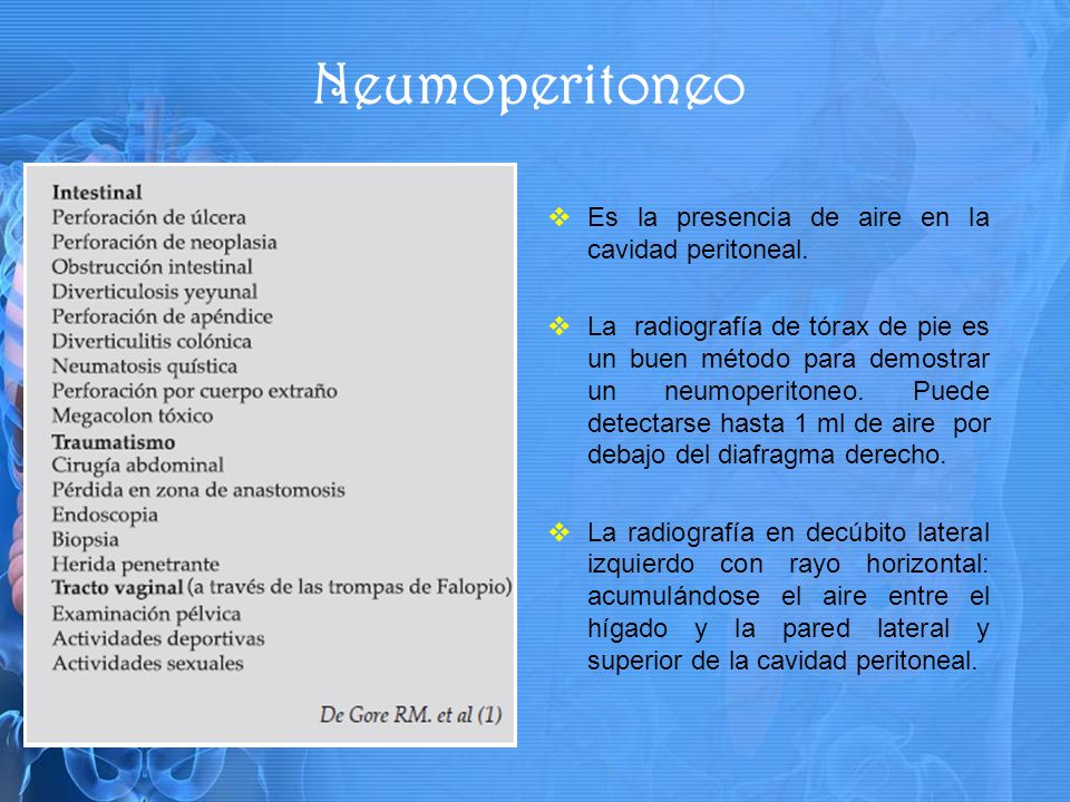 Neumoperitoneo Es la presencia de aire en la cavidad peritoneal.