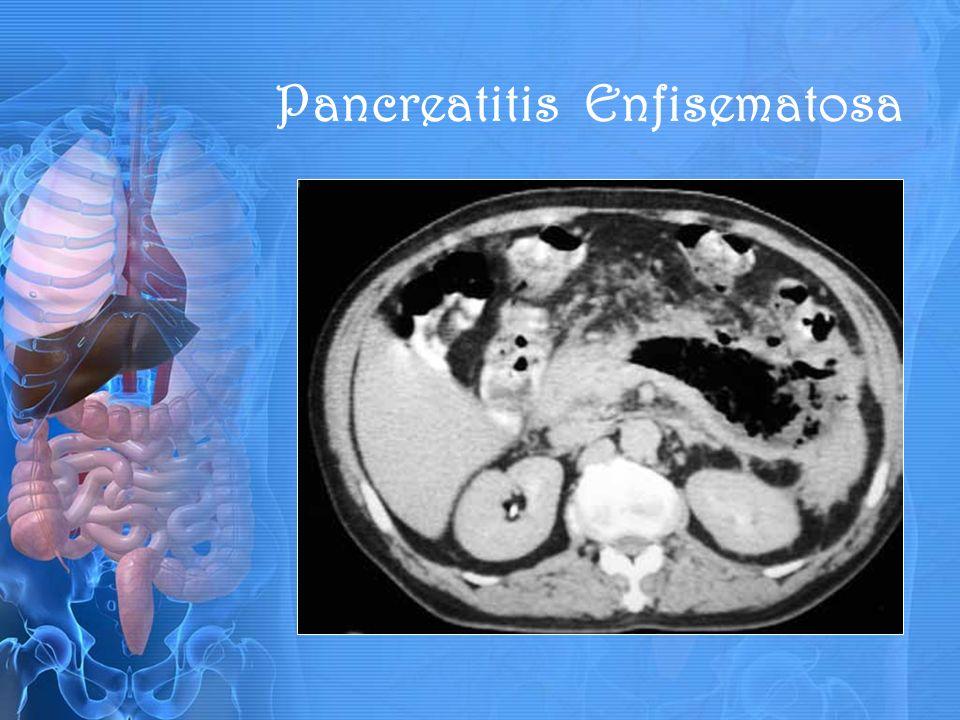 Pancreatitis Enfisematosa