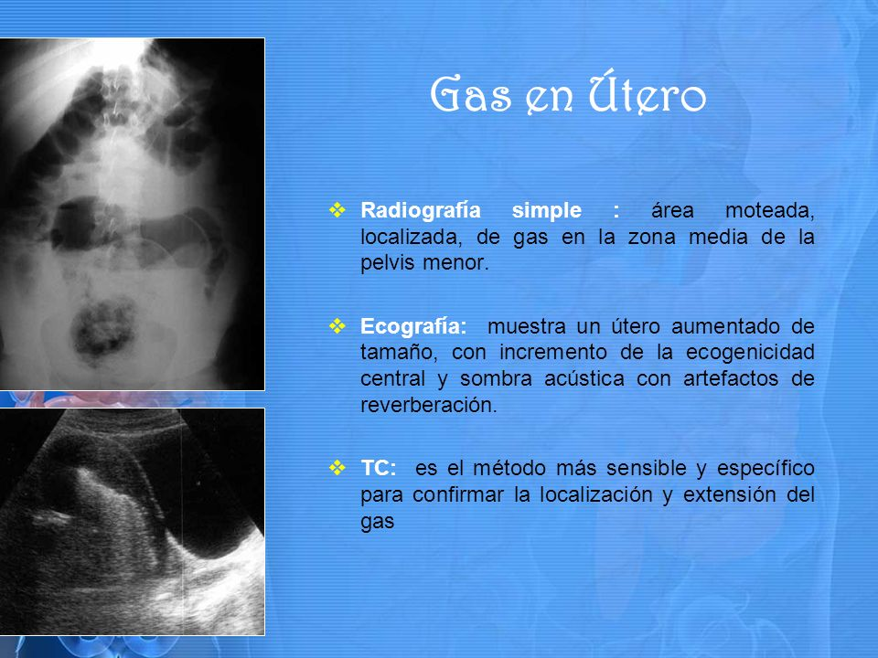 Gas en Útero Radiografía simple : área moteada, localizada, de gas en la zona media de la pelvis menor.
