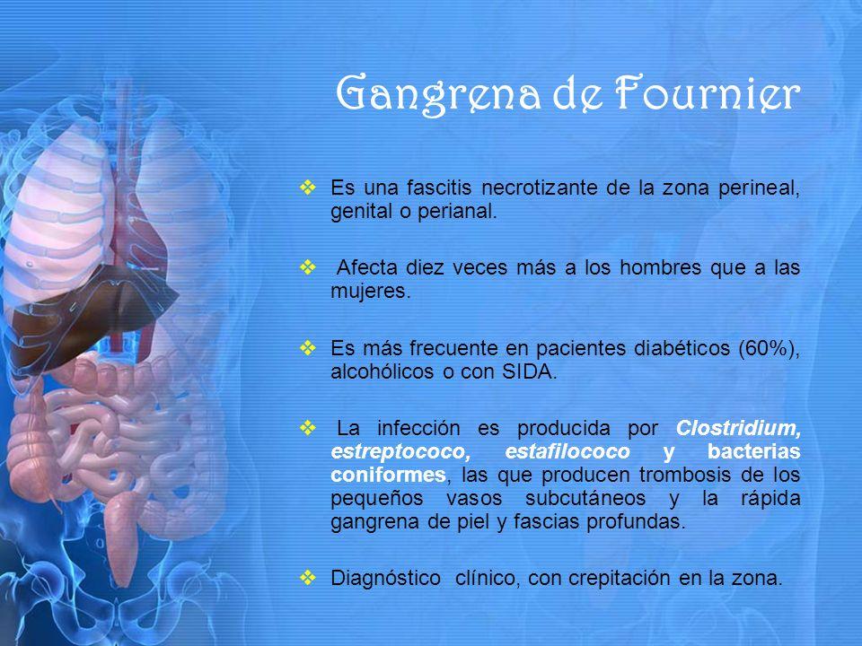 Gangrena de Fournier Es una fascitis necrotizante de la zona perineal, genital o perianal. Afecta diez veces más a los hombres que a las mujeres.