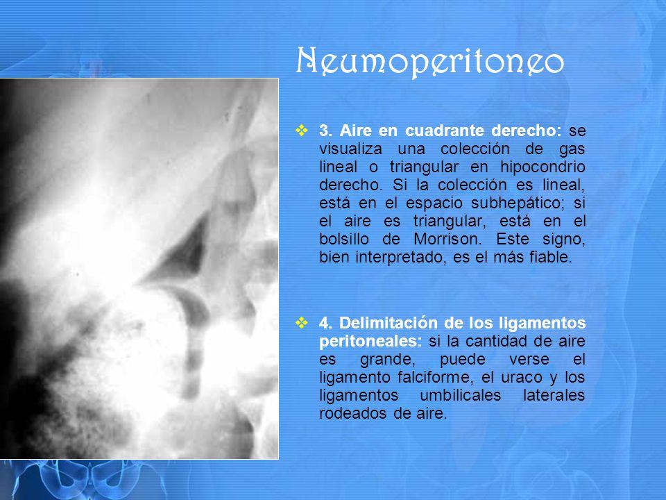 Neumoperitoneo