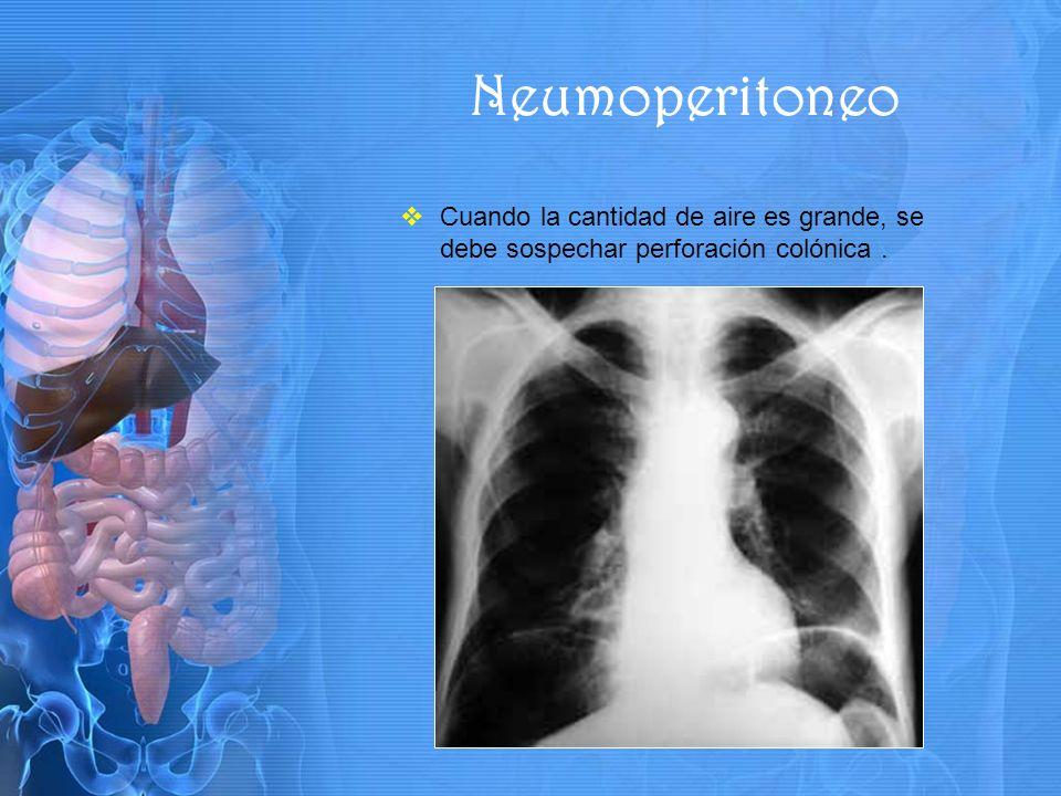 Neumoperitoneo Cuando la cantidad de aire es grande, se debe sospechar perforación colónica .