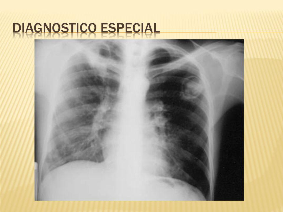 Diagnostico especial