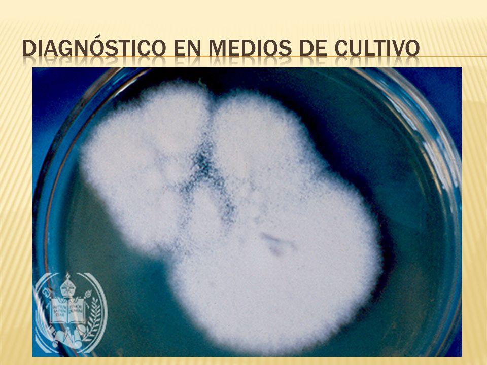 Diagnóstico en Medios de Cultivo