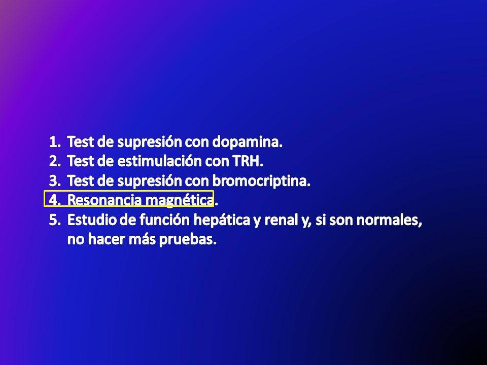 Test de supresión con dopamina.