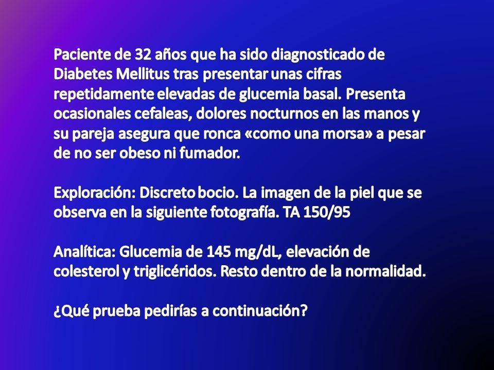 Paciente de 32 años que ha sido diagnosticado de Diabetes Mellitus tras presentar unas cifras repetidamente elevadas de glucemia basal. Presenta ocasionales cefaleas, dolores nocturnos en las manos y su pareja asegura que ronca «como una morsa» a pesar de no ser obeso ni fumador.