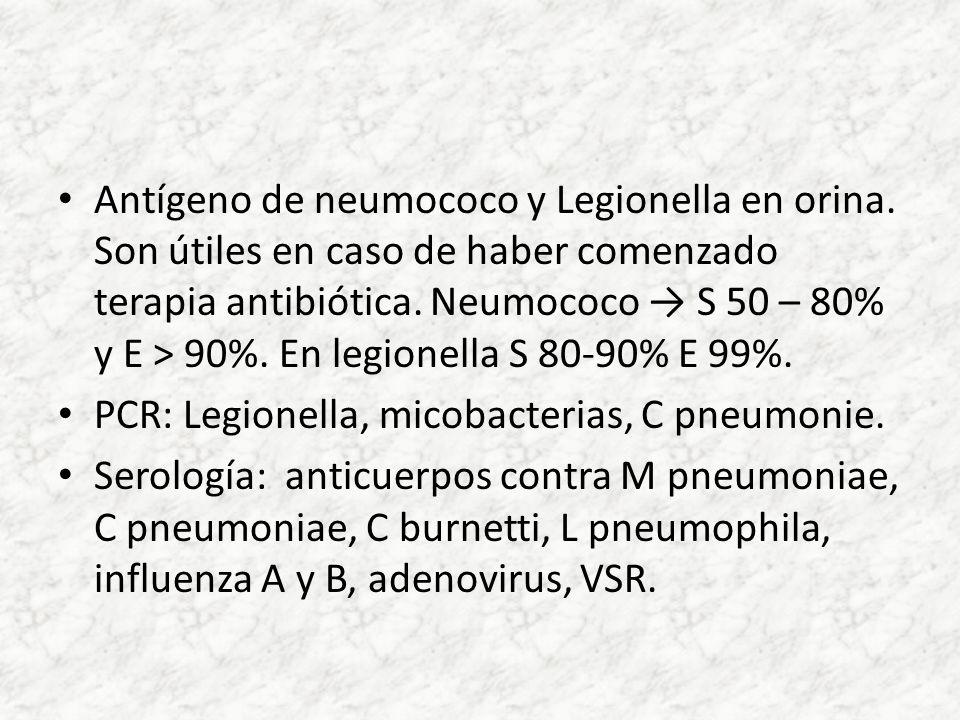 Antígeno de neumococo y Legionella en orina