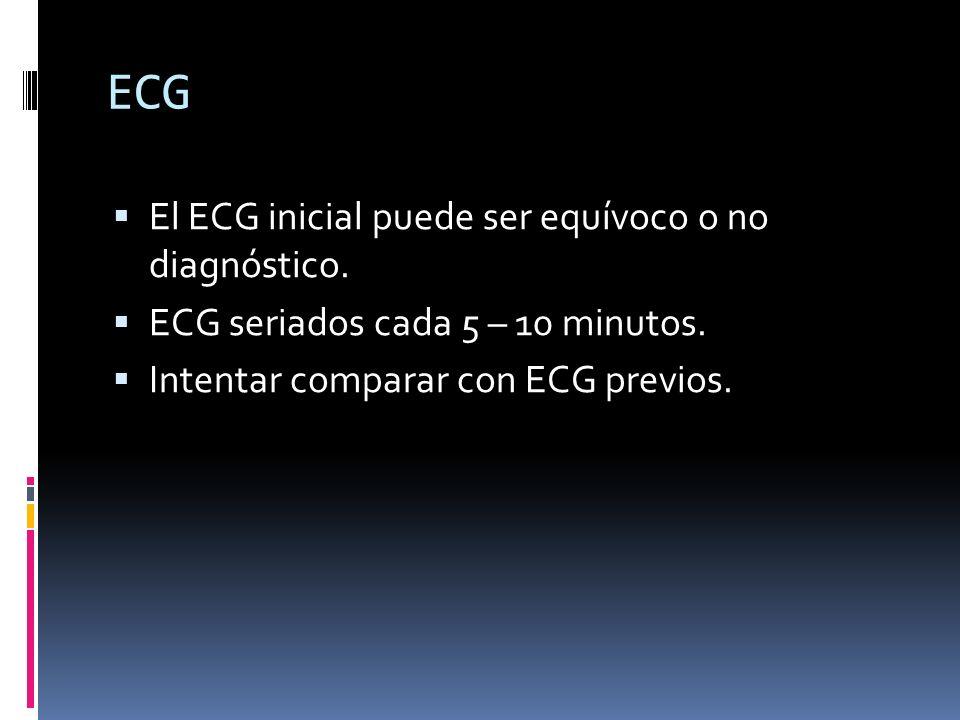 ECG El ECG inicial puede ser equívoco o no diagnóstico.