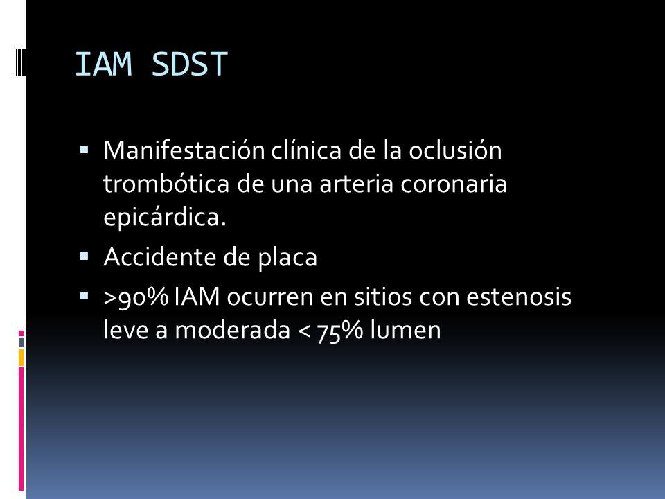IAM SDST Manifestación clínica de la oclusión trombótica de una arteria coronaria epicárdica. Accidente de placa.