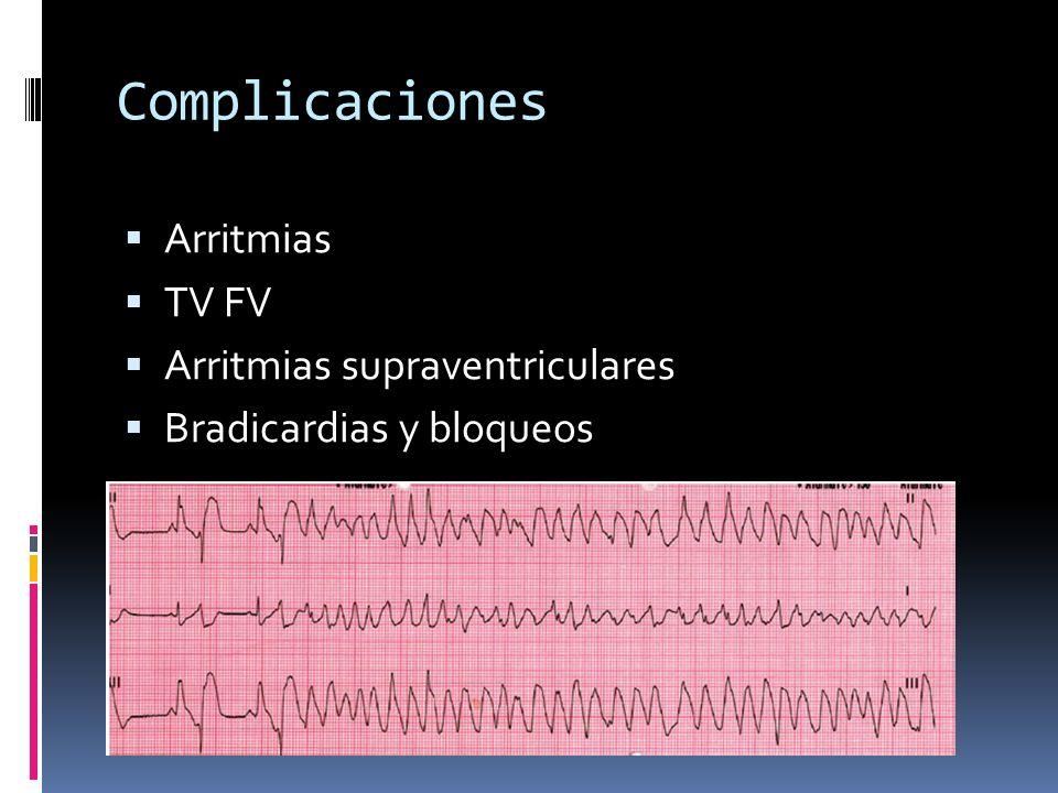 Complicaciones Arritmias TV FV Arritmias supraventriculares