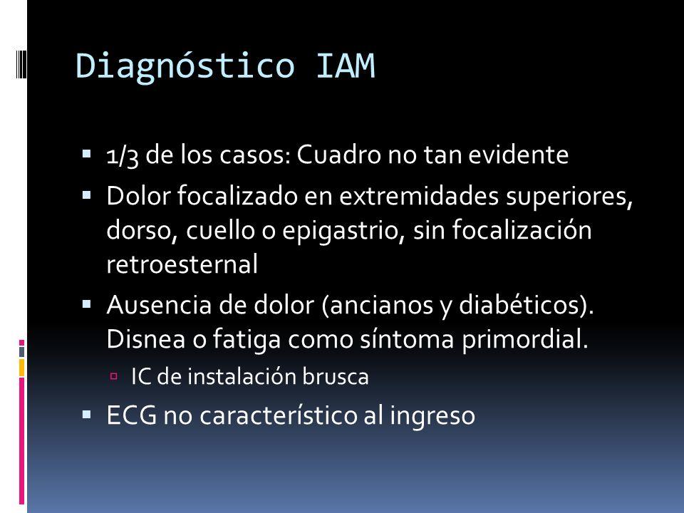 Diagnóstico IAM 1/3 de los casos: Cuadro no tan evidente