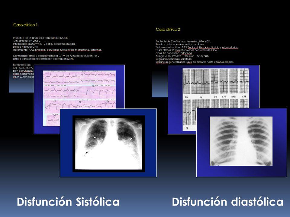 Disfunción Sistólica Disfunción diastólica