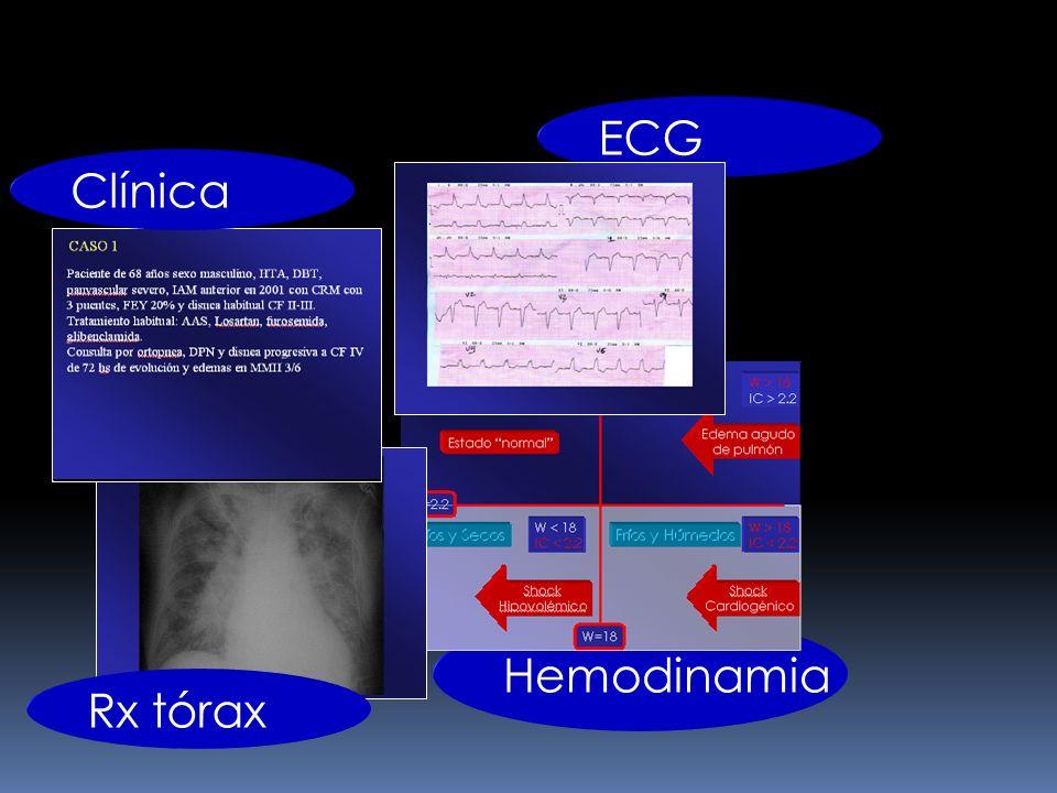 ECG Clínica Hemodinamia Rx tórax