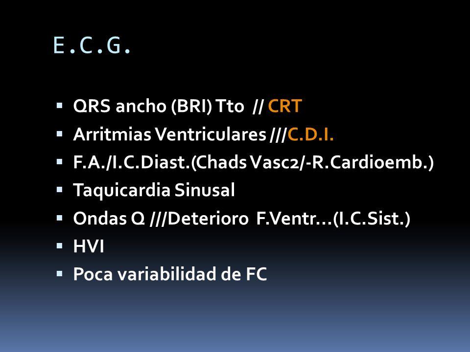 E.C.G. QRS ancho (BRI) Tto // CRT Arritmias Ventriculares ///C.D.I.